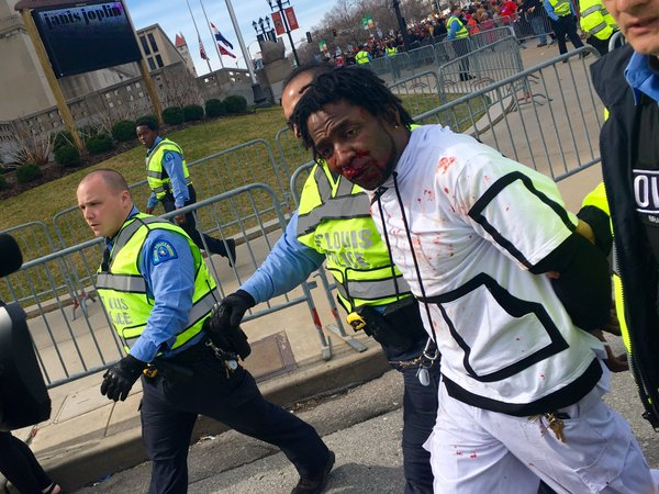 Bloodied. Donald Trump Rally St. Louis